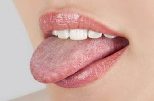 Oral Thrush in Adults