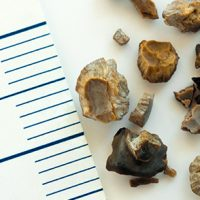 Kidney Stone