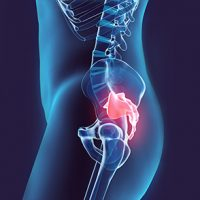 What Is Tailbone Pain