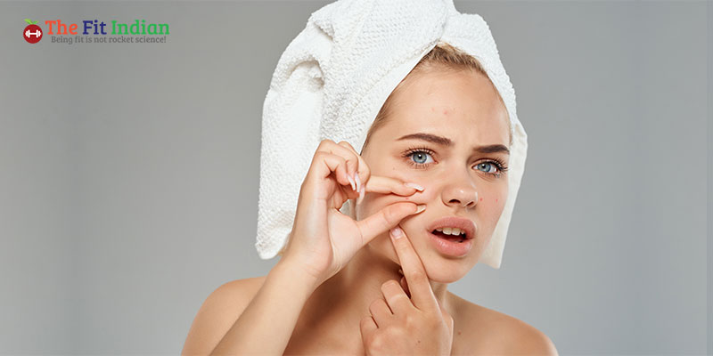 Why Acne Scars or Pimple Marks occur?
