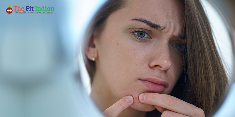 What are acne scars and pimple marks?