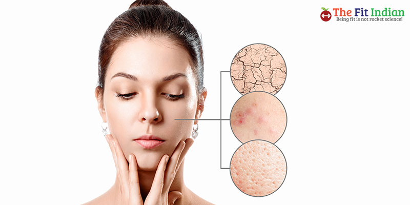 What are acne and pimples?