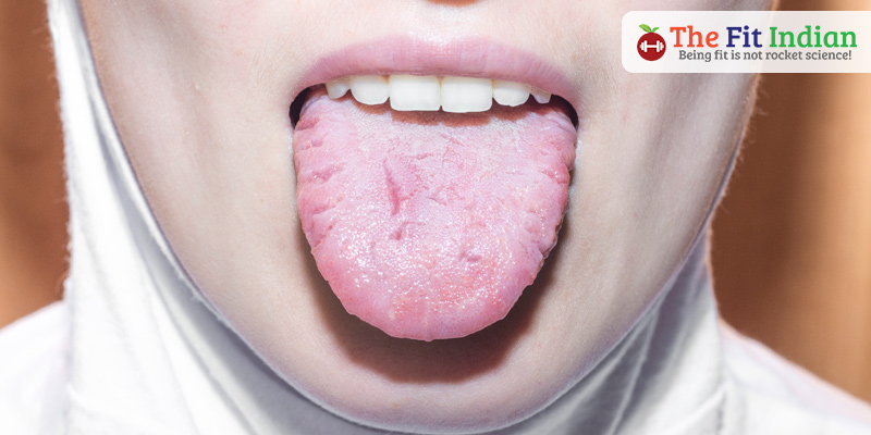Pale tongue with red spots