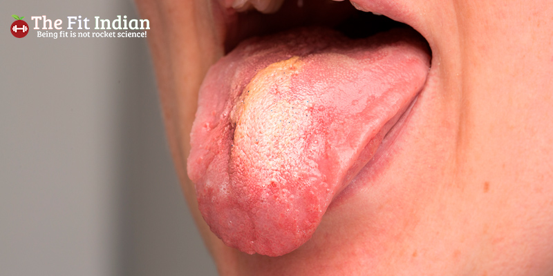Swollen tongue with white greasy coating