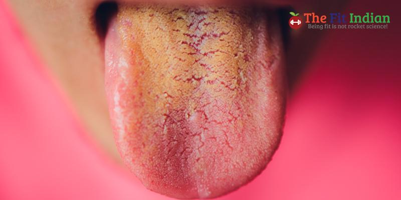 Brown tongue