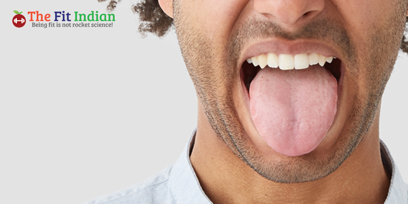 What is Covid Tongue?
