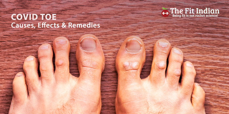 Covid Toe: Causes, Effects & Remedies