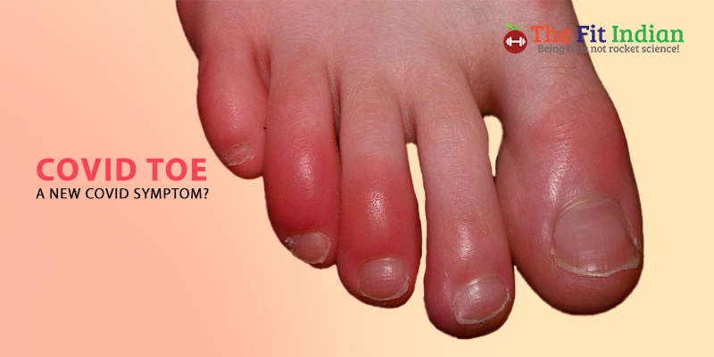 What is COVID Toe?